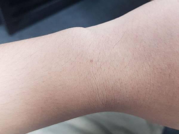 Xem nốt ruồi ở cổ tay trái, phải nam và nữ có ý nghĩa gì